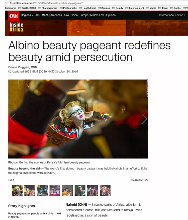 Albino beauty pageant redefines beauty amid persecution - CNN